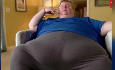 Ekstremalna otyłość.