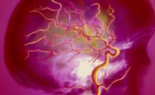 Koronawirus powoduje takie powikłania jak mgła mózgowa i demencja?
