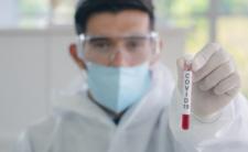 Jak rozpoznać COVID-19? Jak się chronić przed koronawirusem?