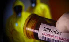 Koronawirus jednak wyciekł z laboratorium? Szokujący komunikat WHO