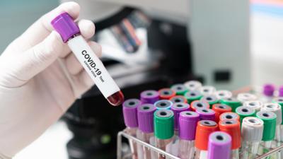 Test na koronawirusa stworzony w Poznaniu! Wielki sukces Polaków