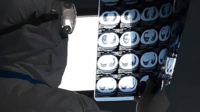 Objawy zapalenia płuc z Wuhan i badanie osłuchowe - NAGRANIE WIDEO