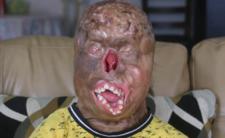 """Poparzone dziecko i poruszająca historia - """"nie jestem zombie"""""""
