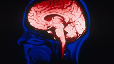Zakażenie koronawirusem grozi poważnymi uszkodzeniami mózgu
