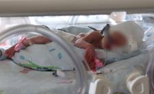 Matka spaliła dziecko po porodzie - historia jak z horroru