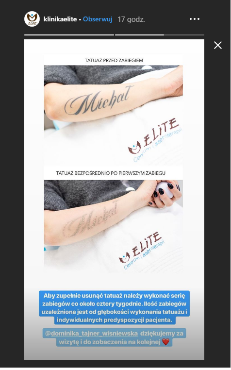 Dominika Tajner Usuwa Tatuaż Z Imieniem Męża Planeta
