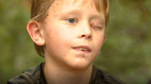 Puma zaatakowała 8-latka