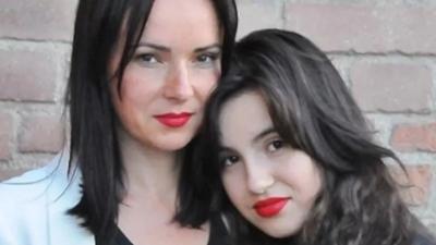 Córka Kasi Kowalskiej prezentuje bliznę po operacji w internecie