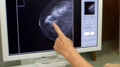 Paulina Młynarska podjęła szokującą decyzję – poddawała się podwójnej profilaktycznej mastektomii.
