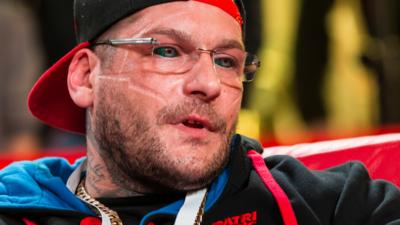 Popek wypada z Fame MMA 9. Pozostała tylko walka o zdrowie