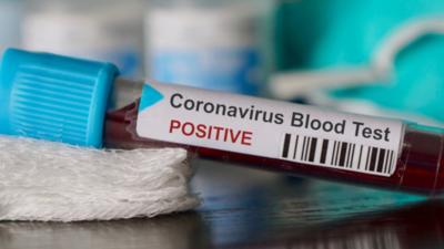 Test na koronawirusa - niemiecki polityk postarał się o wynik pozytywny