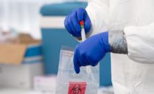 Sanepid wyjawia prawdę: testy na koronawirusa się skończyły!