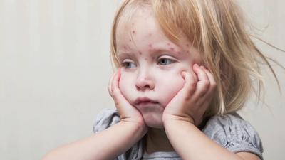 Odra w Polsce - czy własnie zaczyna się zabójcza epidemia?