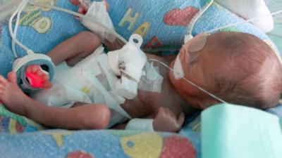 Trudny poród i śmierć matki - liczne komplikacje i walka o życie!
