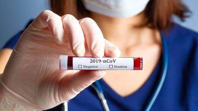 Prywatne testy na koronawirusa już są dostępne. Cena zatrważa