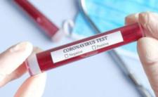 Szybkie testy na koronawirusa - nowe informacje i termin