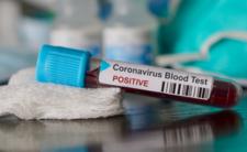 Koronawirus atakuje! Wiceminister zdrowia zarażony