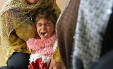 Prawo w Niemczech przegrywa z tradycją - obrzezanie dziewczynek to powszechna praktyka