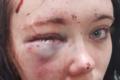 Pobił nastolatkę i uszkodził jej mózg. Dostał śmieszny wyrok [18+]