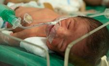 Polio powraca. Wirus wykryty na Ukrainie