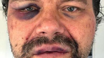 Polski dziennikarz pobity w Wenezueli. Na głowę założyli mu worek